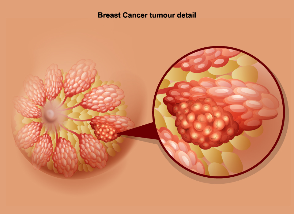 Breast Cancer Signs Symptoms Stages Treatment About