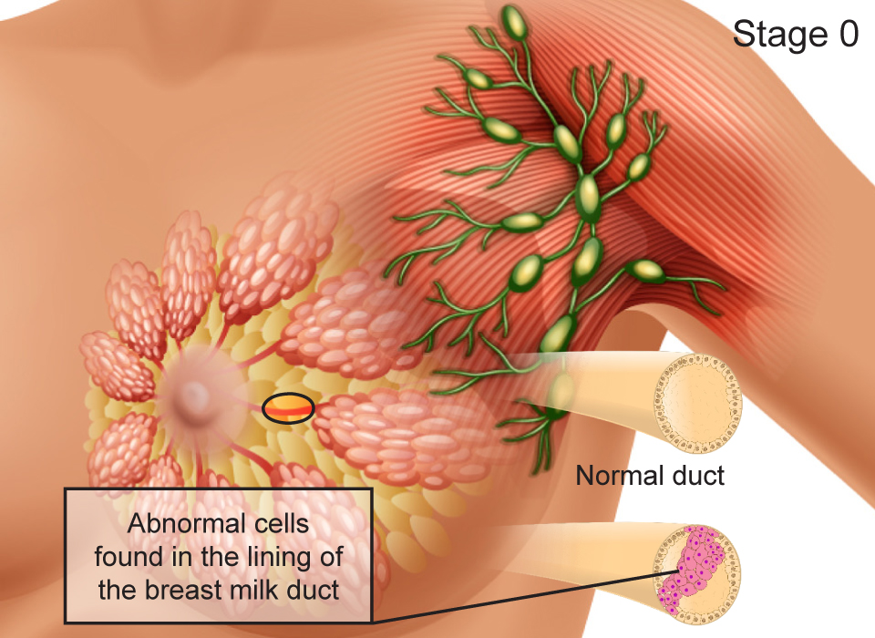 Breast Cancer Stages, Stage 0 (Situ): Abnormal cells found in the lining of the breast milk duct Large, Ashray Mylan