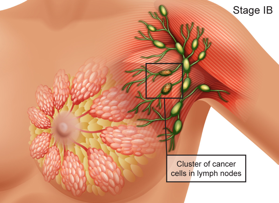 Breast Cancer Stages, Stage IB: Cluster of cancer cells in lymph nodes Large, Ashray Mylan
