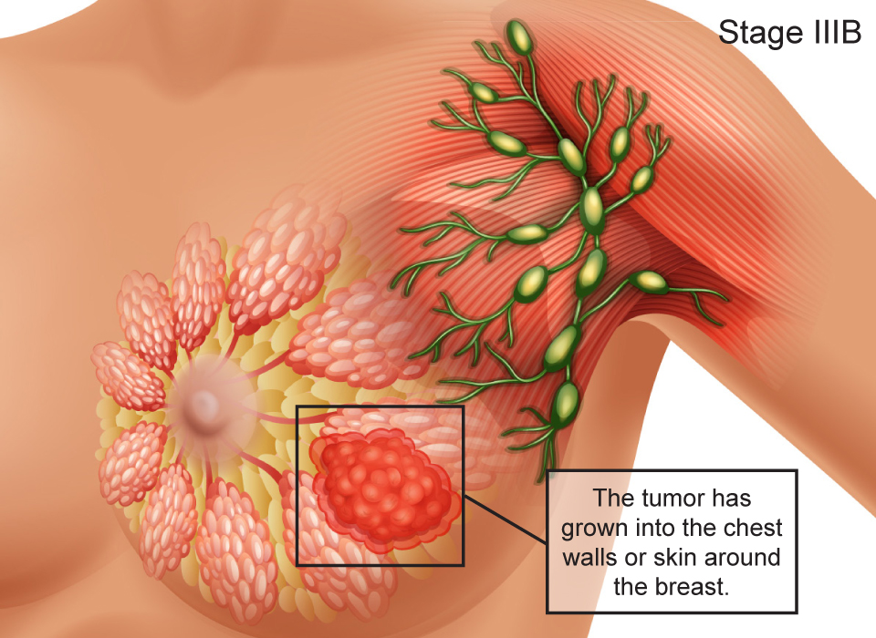 how to tell if lump is cancerous in breast