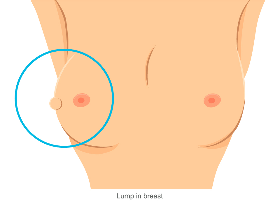 Breast Cancer Symptoms, Lump in Breast Large, Ashray Mylan