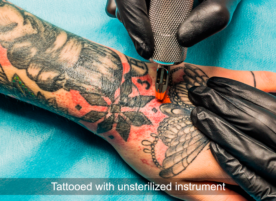 Risk of developing Hepatitis C: Tattooed with unsterilized instrument. Hepatitis C, Ashray Mylan
