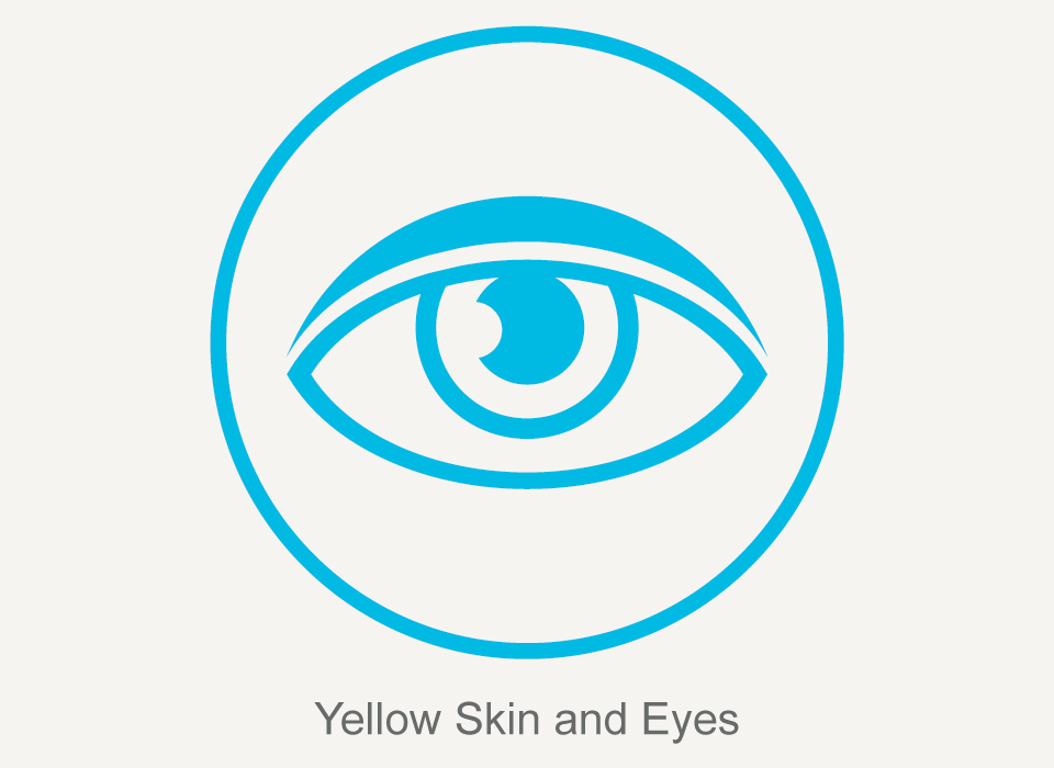 Common symptoms: Yellow Skin and Eyes, Hepatitis C, Ashray Mylan