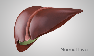 Stages of Liver disease: Normal, Hepatitis C, Ashray Mylan